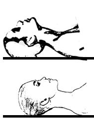 collo1